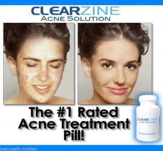 Best Acne Treatment Pill RID Pimples Clear Skin Vitamin