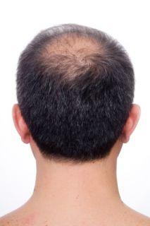 BEST MENS THINNING THIN BALDING REGROWTH & GRAY GRAYING HAIR